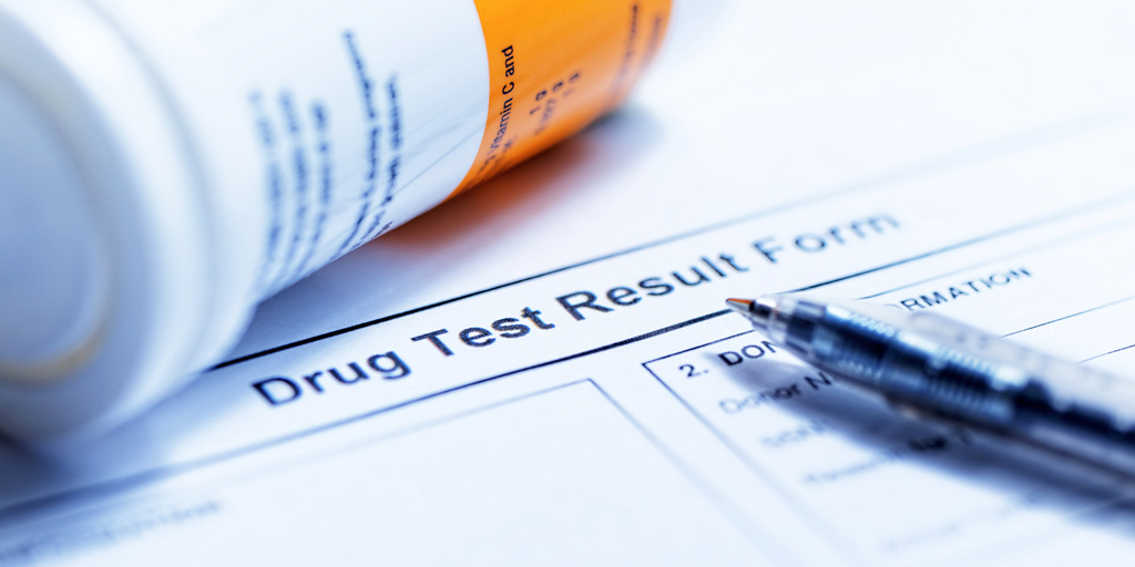no drug testing in the workplace essay